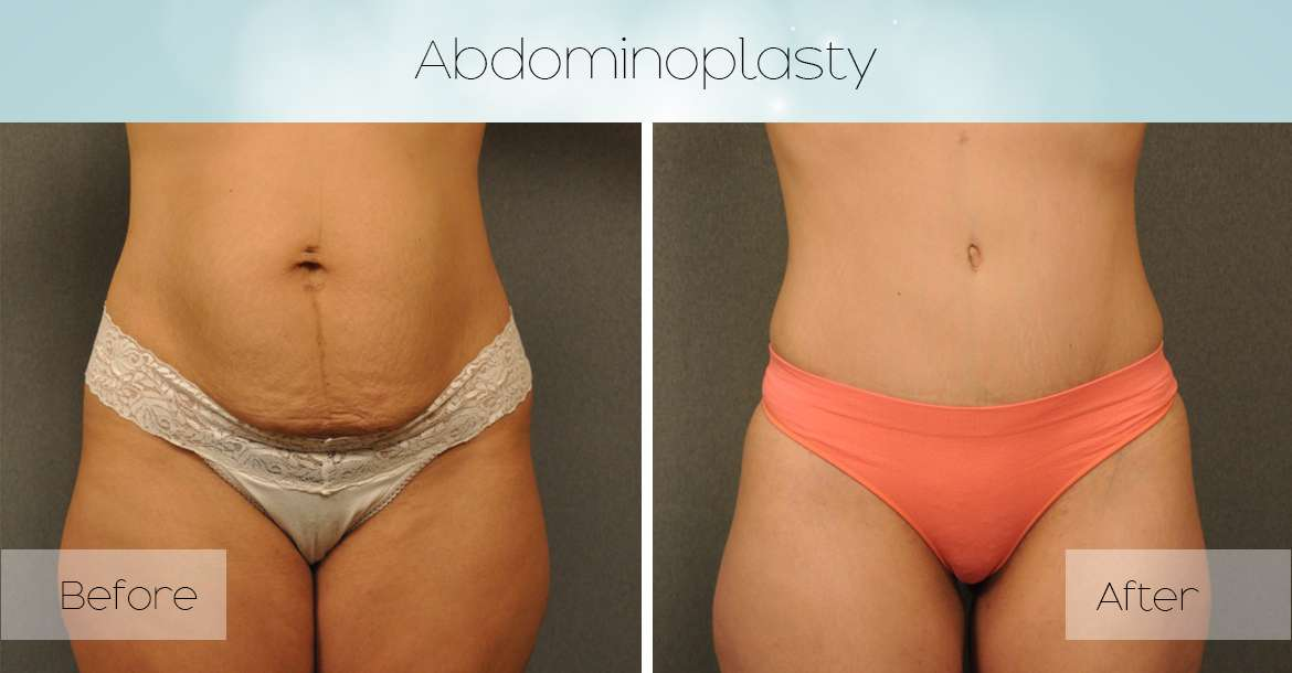 Things You Should Know About Abdominoplasty or 'Tummy Tuck'
