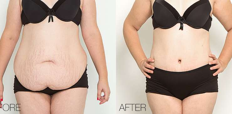 Abdominoplasty: The Solution To Remove Excess Skin And Fat